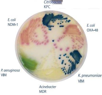 Hylabs碳青霉烯类耐药肠杆菌(CRE)检测琼脂培养板