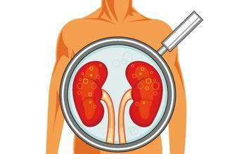 Biosynex肾功能相关快速诊断产品(胶体金法)